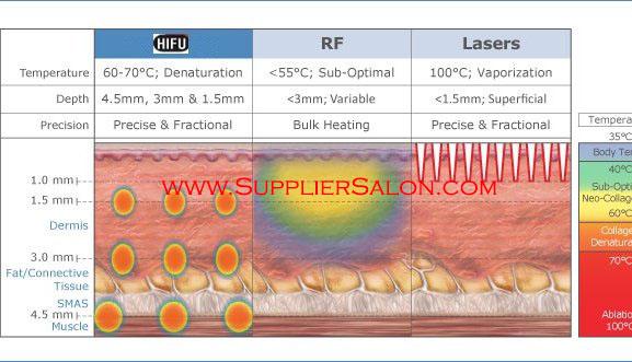 Perbandingan Terapi Laser Photodynamic Dan Radiofrequency Untuk Kulit Berjerawat